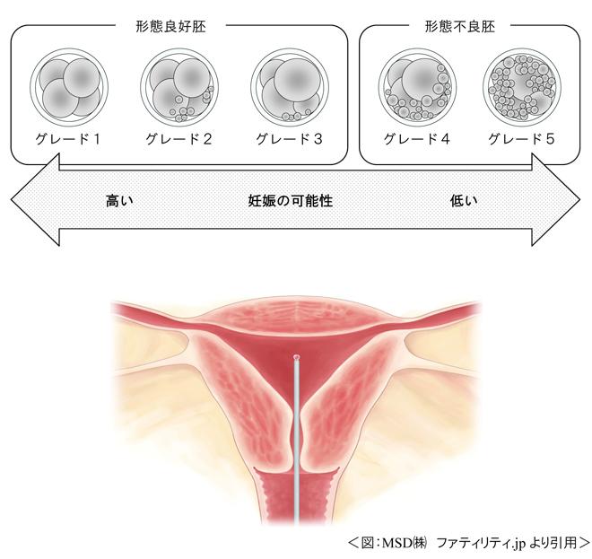 時期 着 床 胞 移植 胚 盤